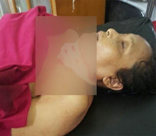 Jenazah Dosen UMSU Medan yang Jadi Korban Pembunuhan Berada di RS Bhayangkara
