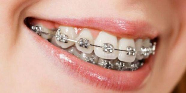 Hukum Memakai Kawat Gigi dalam Islam