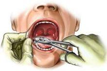 pasien-ini-meninggal-saat-cabut-gigi