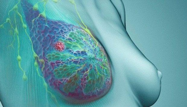 Kanker Payudara Rupanya Bisa Dicegah dengan Mudah