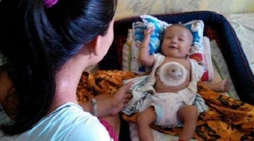 """Bayi """"Sakti"""" Ini Selalu Tersenyum meski Jantungnya di Luar Tubuh dan Hanya Ditutupi Mangkok Sayur"""