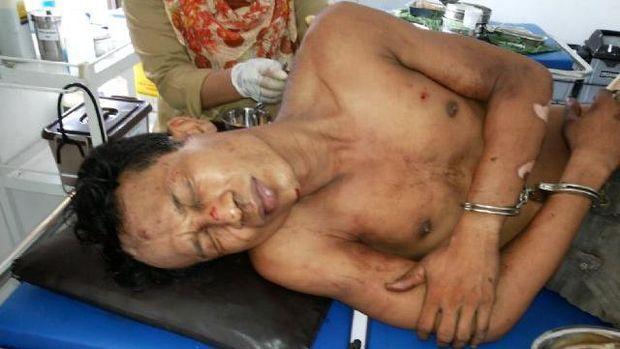 Seorang Tahanan Polisi dari Kuansing Kabur saat akan Menjalani Operasi di RS Bhayangkara Polda Riau
