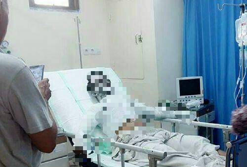 Sempat Mendapat Perawatan, Korban Drum Meledak di Jalan Hang Tuah Duri Akhirnya Meninggal Dunia di RSUD Pekanbaru